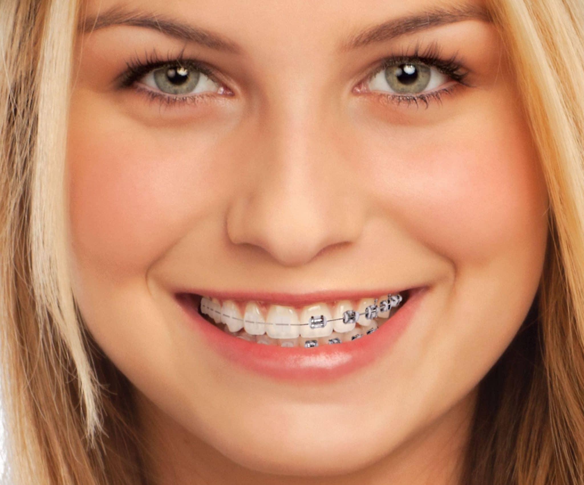 parentesi-zeramika-ortodontzia-klinikoa-hortz-madrideko irudia