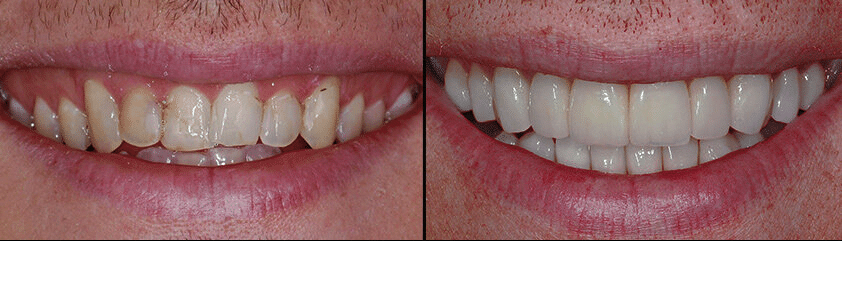 imagen de caso real de carillas lanchares dental 2